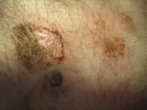 Arzneimittelreaktion (Erythema minor) bei einem Hund
